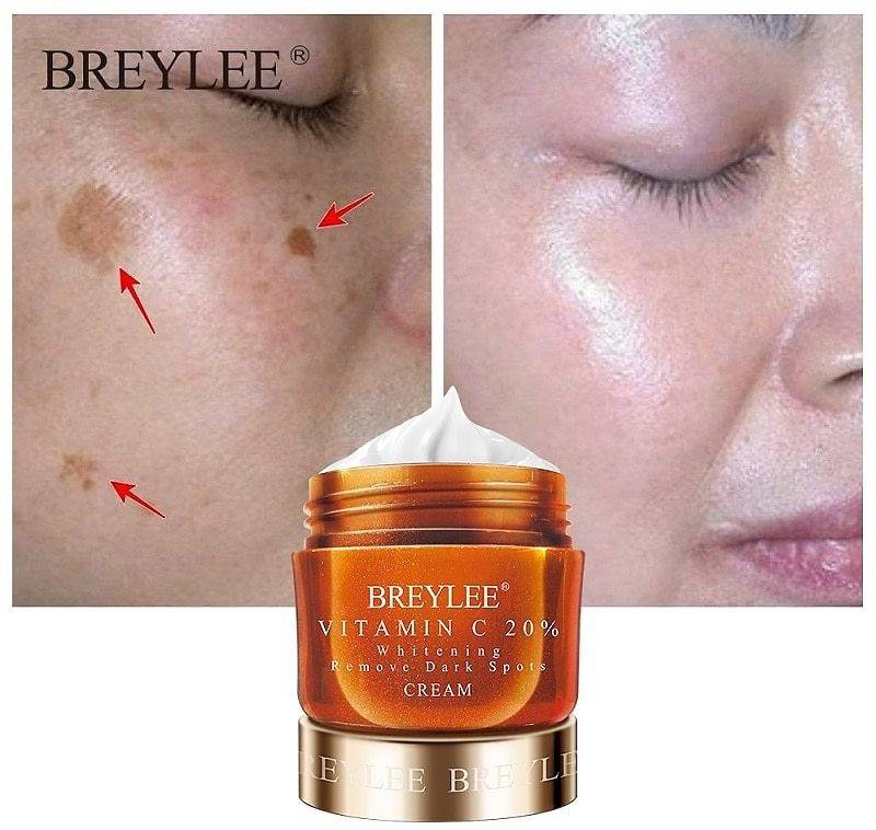 US $9.13 39% OFF|BREYLEE Vitamin C 20% VC Whitening Facial Cream Repair Fade Freckles Remove Dark Spots Melanin Remover Brightening Face Cream|Facial Self Tanners & Bronzers| - AliExpress