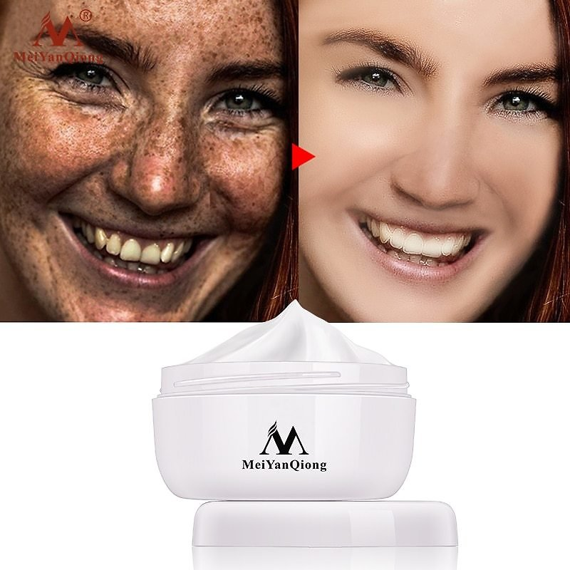 US $3.99 60% OFF Powerful Whitening Freckle Cream 40g Remove Melasma Acne Spots Pigment Melanin Dark Spots Face Lift Firming Face Care Cream Skin Facial Self Tanners & Bronzers  - AliExpress