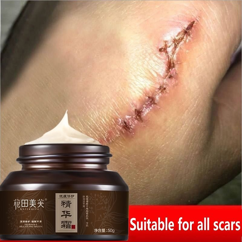 US $18.19 35% OFF|WATIANMPH Acne Scar Removal Cream For Old Scar Caesarean Scars Surgical Scars Burn Scars Body Care Herbs Cream Kids&Adults 50g| | - AliExpress