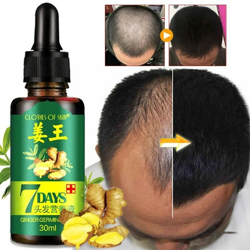 US $6.47 63% OFF|Ginger Hair Growth Essence 7 Days Germinal Hair Growth Serum Essence Oil Hair Loss Treatment Growth Hair for Men Women|Hair Loss Products| - AliExpress