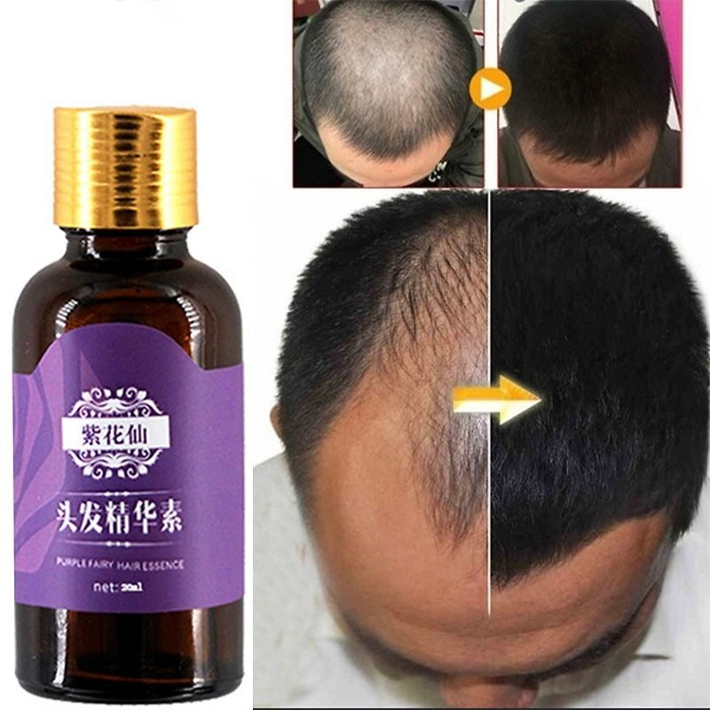 US $9.82 41% OFF|Hair Loss Products Natural With No Side Effects Grow Hair Faster Regrowth Hair Growth Products|oil Capacities|oil Natural Air Naturalbuild a Bear Christmas - AliExpress