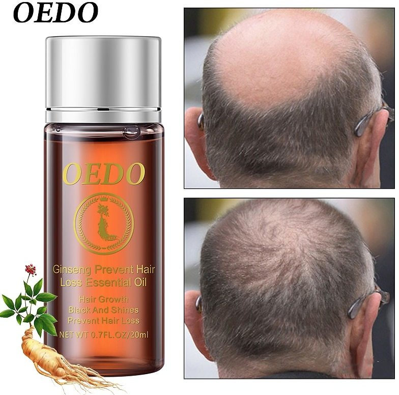 OEDO Ginseng Hair Oil Keratin Hair Care Hair Keratin Hair Care Hair Growth Hair Loss Damage Hair Repair Treatment Dense
