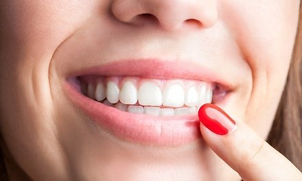 One 30-Minute Brillant Brite In-Office Teeth - Teeth Whitening At The Whitening Clinic (Up to 78% Off). 10 Options Available